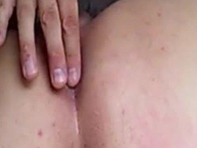 anus attack